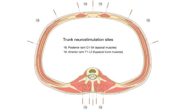 Trunk Neurostimulation Sites