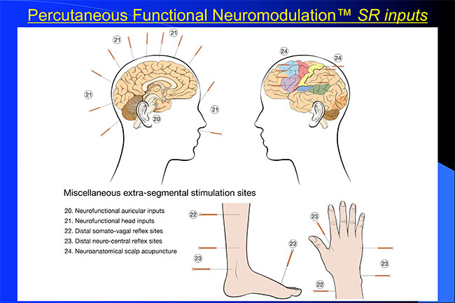 The Percutaneous Functional Neuromodulation™ SR Inputs