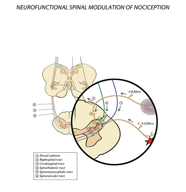 Figure 2 - Neurofunctional Spinal Modulation of Nociception. Photo credit: Copyright © 2013 by Dr. Alejandro Elorriaga Claraco. All rights reserved.