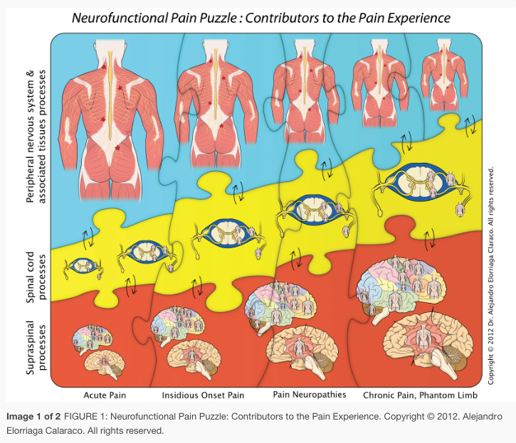Neurofunctional Pain Puzzle